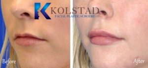carmel valley del mar carlsbad best filler injector top doctor natural lips fuller pout juvederm cost
