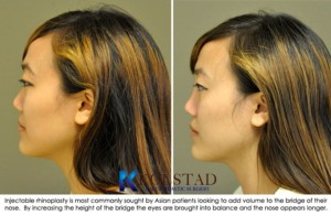 injectable rhinoplasty asian la jolla carlsbad encinitas juvederm liquid nose job fillers san diego nose job
