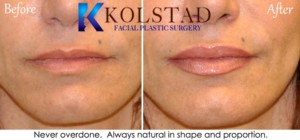 juvederm ultra lip augmentation injectable fillers san diego la jolla encinitas top filler injector natural