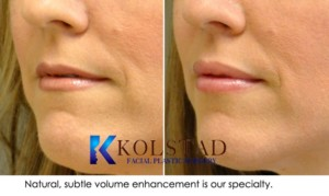 juvederm ultra lip augmentation san diego carmel valley solana beach nonsurgical injectable filler