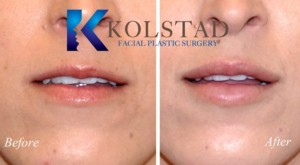 la jolla del mar thin lip fillers injectable juvederm restylane best injector facial plastic surgery natural