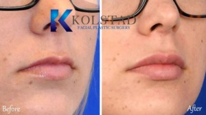 la jolla san diego carmel valley lip augmentation injectable fillers juvederm vollure volbella cost