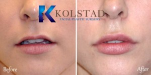 la jolla san diego carmel valley lip fillers enhancement natural augmentation filler cost best plastic surgery