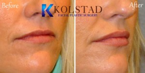 lip augmentation la jolla carlsbad encinitas top filler injector plastic surgery natural beautiful lips