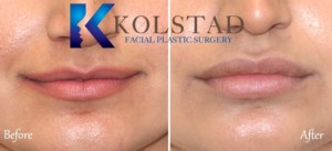 lip augmentation san diego best filler injector doctor natural results fuller lips pretty pout
