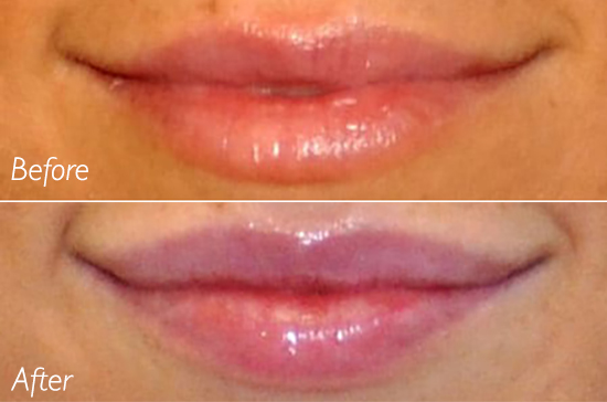 lip augmentation san diego carmel valley rancho santa fe best facial plastic surgeon fuller lips pricing fillers