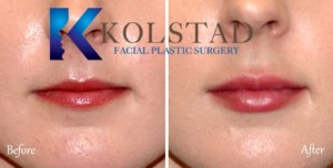 lip augmentation san diego la jolla del mar best filler injector facial plastic surgery pricing