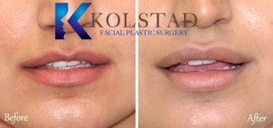 lip enhancement san diego top filler specialist facial plastic surgery results before after photos