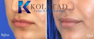 lip filler san diego la jolla del mar natural results fuller lips pout augmentation enhancement
