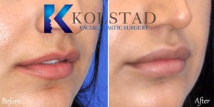 lip injection san diego carlsbad del mar expert filler injector top doctor best plastic surgery