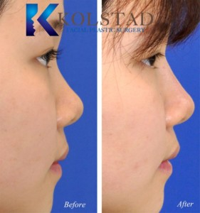 liquid asian rhinoplasty specialist injectable fillers best juvederm doctor san diego del mar rancho santa fe