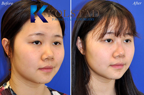 liquid injectable filler rhinoplasty asian nose specialist juvederm restylane san diego carlsbad encinitas