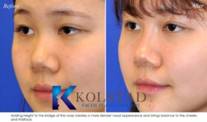 liquid rhinoplasty la jolla del mar carmel valley asian nose job flat nose bridge projection top plastic surgeon