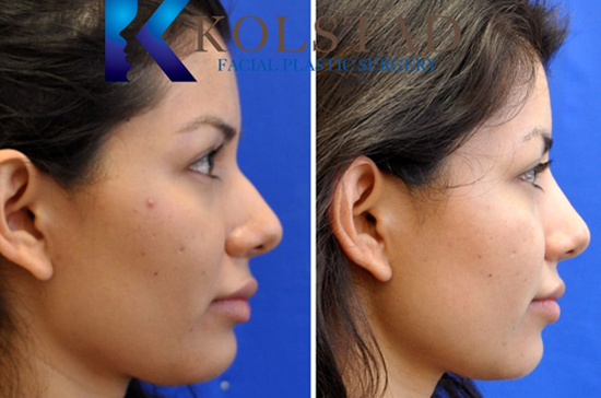 liquid rhinoplasty san diego del mar solana beach best filler injector facial plastic surgery results natural