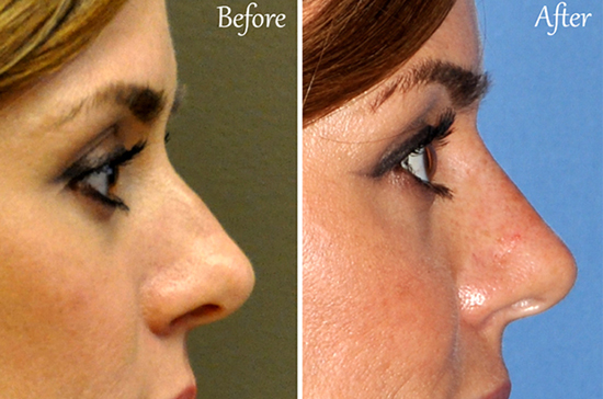 liquid rhinoplasty san diego la jolla del mar injectable filler nose job nonsurgical natural results