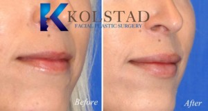 san diego best lip augmentation fuller lips dermal injectable fillers natural results enhancement