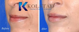 san diego carmel valley top lip injections thin lips fuller shape rejuvenation enhancement filler