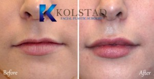san diego la jolla del mar lip fillers natural augmentation fuller lips filler injector best doctor natural