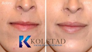 san diego la jolla lip augmentation injectable fillers top juvederm injector best results natural lips