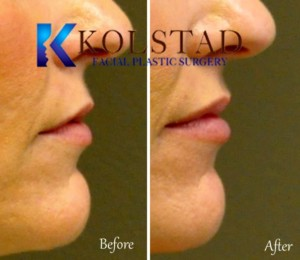 san diego la jolla solana beach best lip augmentation injectable dermal fillers juvederm restylane natural