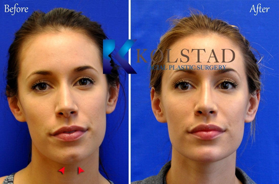 Injectable chin filler jawline recontouring natural results top doctor san diego la jolla del mar natural results