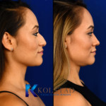 rhinoplasty for droop tip