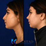 before and after middle eastern rhinoplasty