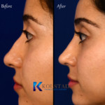 nose job middle eastern san diego