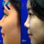 asian nonsurgical rhinoplasty results