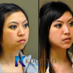 before and after chin augmentation asian