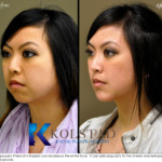 chin augmentation for asians
