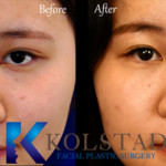 liquid rhinoplasty for asian before and after