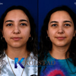 nose and chin surgery san diego