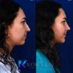 nose job and chin surgery san diego