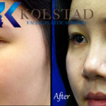 san diego asian rhinoplasty before and after