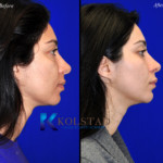 cosmetic eye surgery before and afters san diego