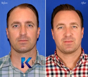 full head hair transplant san diego