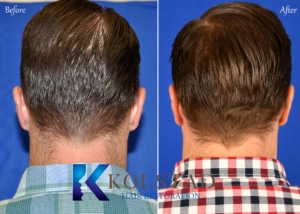 hair transplant scar back of head