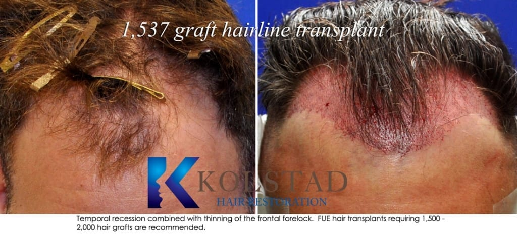 frontal hairline restoration san diego