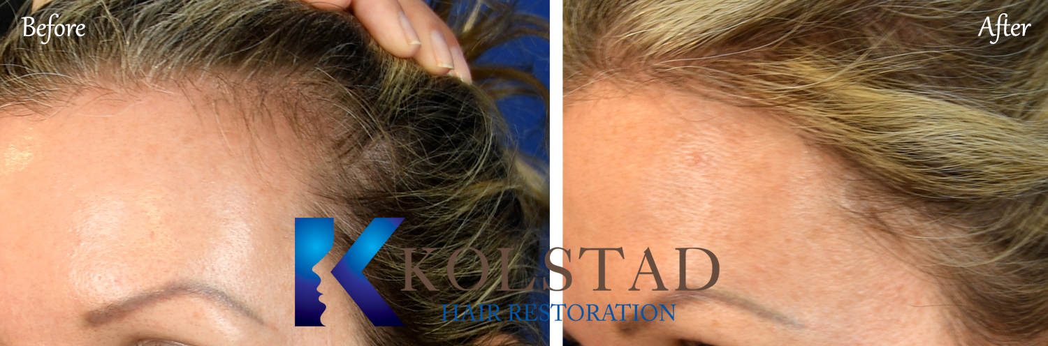 natural hair transplant san diego